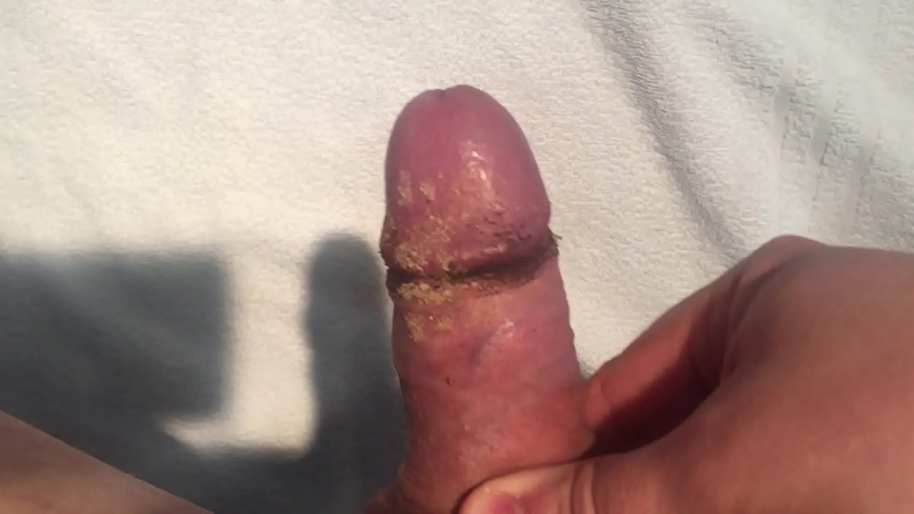 Porn smegma smegma Videos